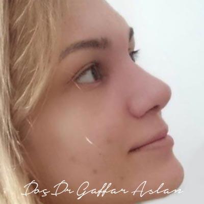 Ultrasonik Rinoplasti 02 - Doç. Dr. Gaffar Aslan